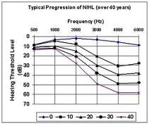 human hearing loss with age